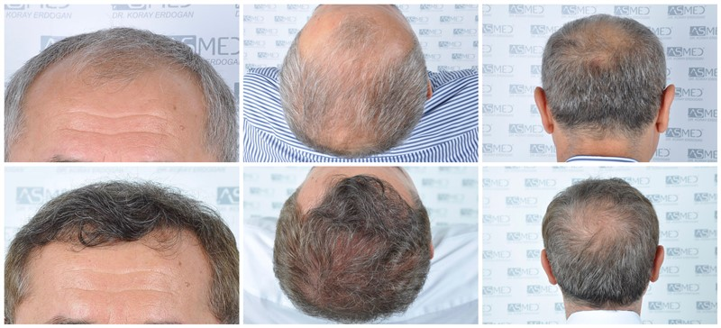 Dr. Koray Erdogan - 5011 Grafts FUE