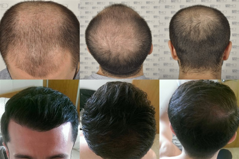 Dr Koray Erdogan -  5012 grafts FUE