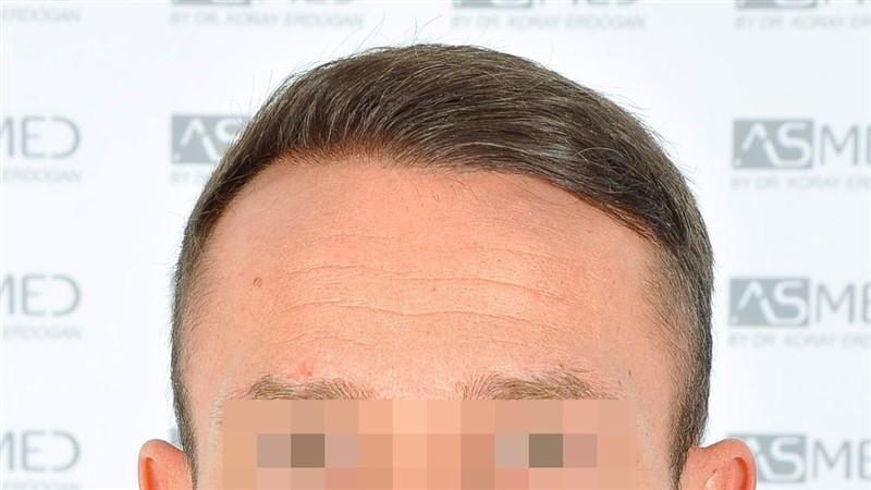 https://www.hairtransplantfue.org/asmed-hair-transplant-result/upload/Norwood5/5015-grafts-FUE/after18months/d1crop_V2.jpg