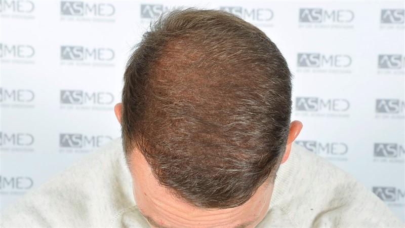https://www.hairtransplantfue.org/asmed-hair-transplant-result/upload/Norwood5/5015-grafts-FUE/after18months/d2crop_V2.jpg