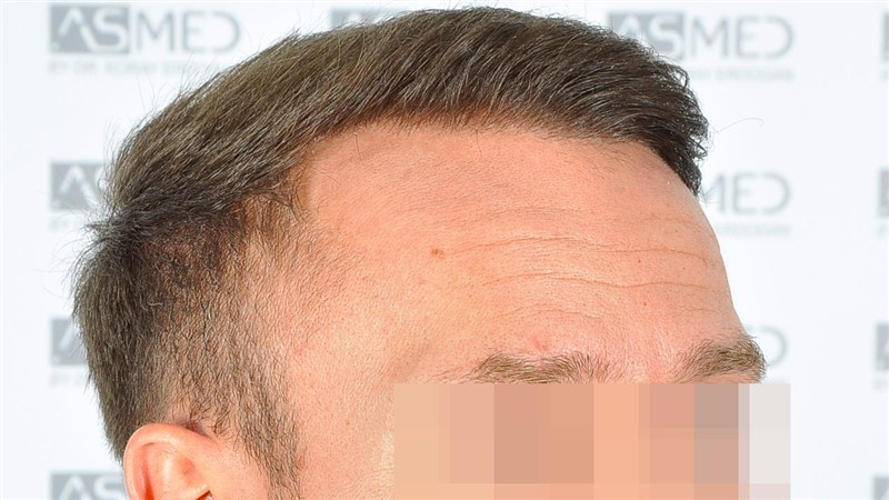 https://www.hairtransplantfue.org/asmed-hair-transplant-result/upload/Norwood5/5015-grafts-FUE/after18months/d3crop_V2.jpg