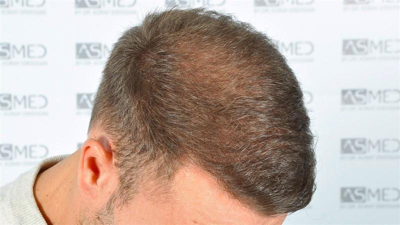 https://www.hairtransplantfue.org/asmed-hair-transplant-result/upload/Norwood5/5015-grafts-FUE/after18months/d4crop_V2.jpg