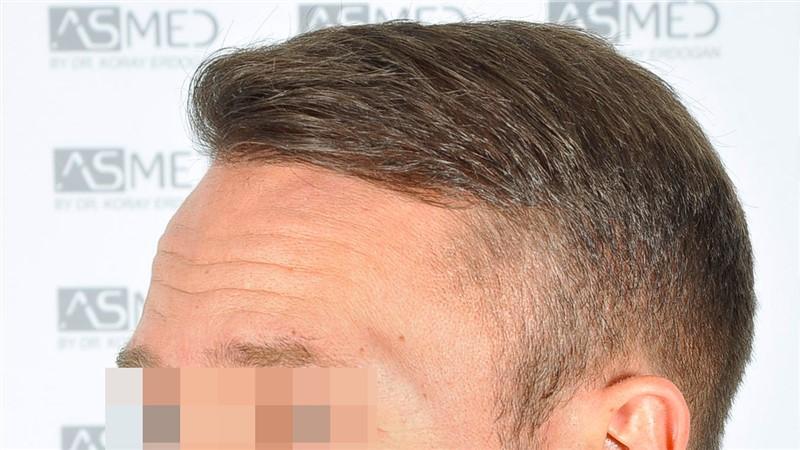 https://www.hairtransplantfue.org/asmed-hair-transplant-result/upload/Norwood5/5015-grafts-FUE/after18months/d5crop_V2.jpg