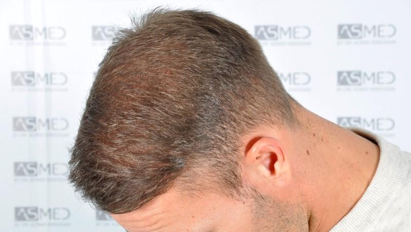 https://www.hairtransplantfue.org/asmed-hair-transplant-result/upload/Norwood5/5015-grafts-FUE/after18months/d6crop_V2.jpg