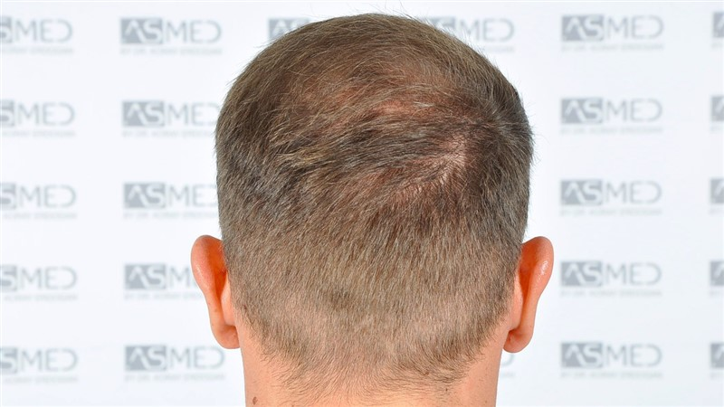 https://www.hairtransplantfue.org/asmed-hair-transplant-result/upload/Norwood5/5015-grafts-FUE/after18months/d7crop_V2.jpg
