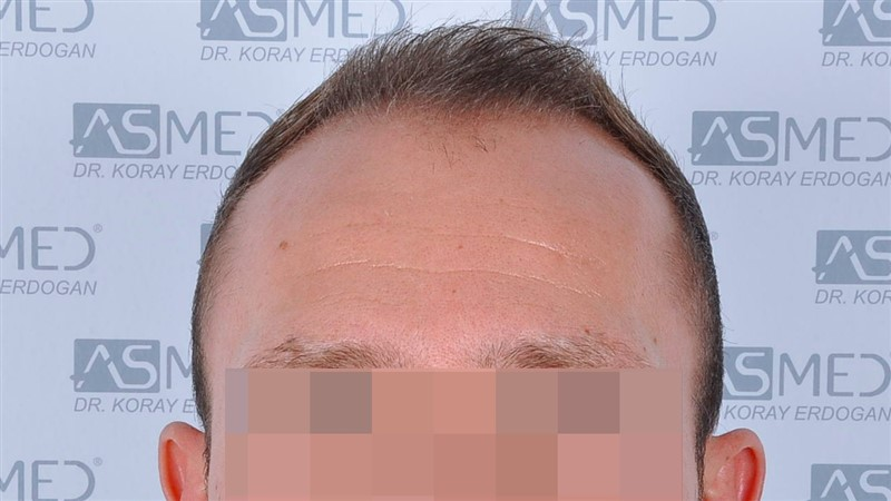 https://www.hairtransplantfue.org/asmed-hair-transplant-result/upload/Norwood5/5015-grafts-FUE/before/a1crop_V2.jpg