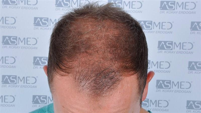 https://www.hairtransplantfue.org/asmed-hair-transplant-result/upload/Norwood5/5015-grafts-FUE/before/a2crop_V2.jpg