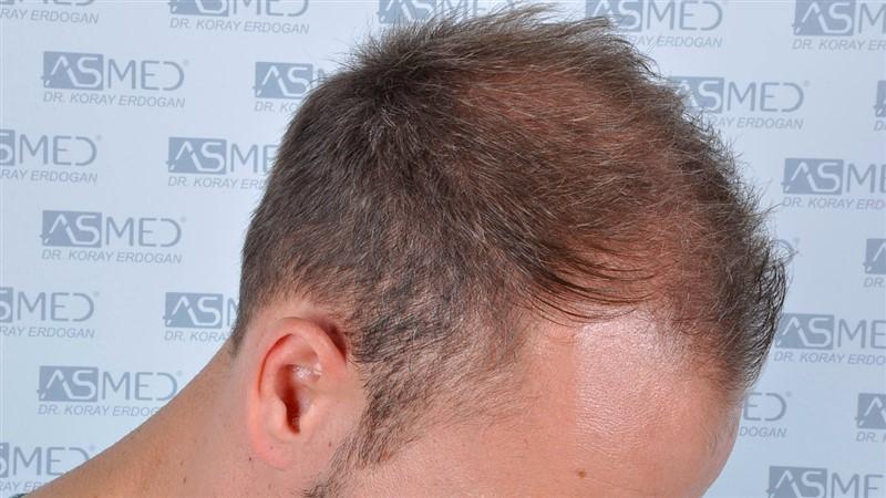 https://www.hairtransplantfue.org/asmed-hair-transplant-result/upload/Norwood5/5015-grafts-FUE/before/a4crop_V2.jpg
