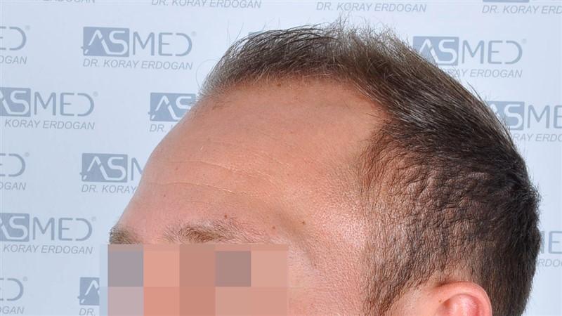 https://www.hairtransplantfue.org/asmed-hair-transplant-result/upload/Norwood5/5015-grafts-FUE/before/a5crop_V2.jpg