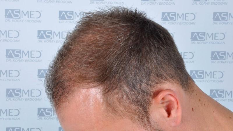 https://www.hairtransplantfue.org/asmed-hair-transplant-result/upload/Norwood5/5015-grafts-FUE/before/a6crop_V2.jpg
