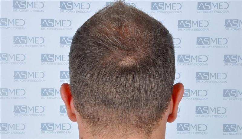 https://www.hairtransplantfue.org/asmed-hair-transplant-result/upload/Norwood5/5015-grafts-FUE/before/a7crop_V2.jpg