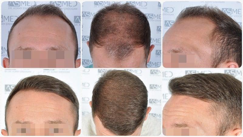 https://www.hairtransplantfue.org/asmed-hair-transplant-result/upload/Norwood5/5015-grafts-FUE/kolaj.jpg