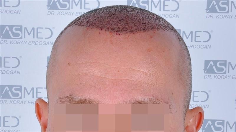 https://www.hairtransplantfue.org/asmed-hair-transplant-result/upload/Norwood5/5015-grafts-FUE/operation/b1crop_V2.jpg