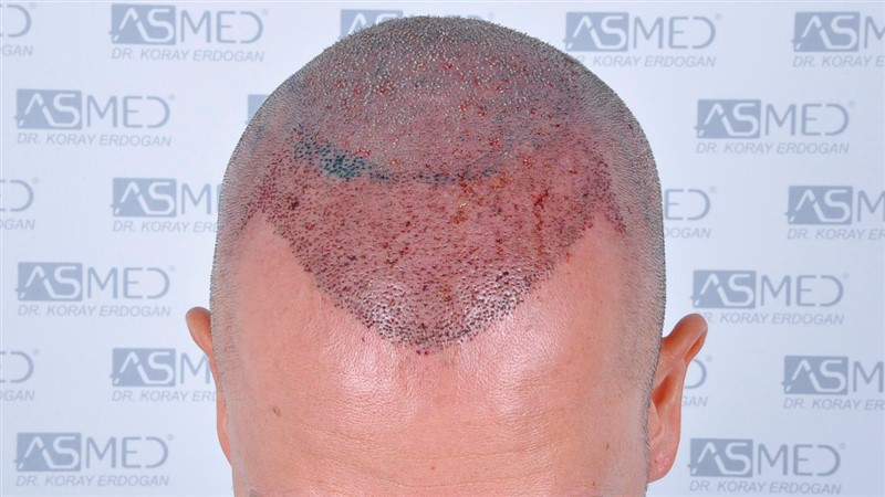 https://www.hairtransplantfue.org/asmed-hair-transplant-result/upload/Norwood5/5015-grafts-FUE/operation/b2crop_V2.jpg