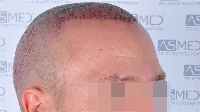 https://www.hairtransplantfue.org/asmed-hair-transplant-result/upload/Norwood5/5015-grafts-FUE/operation/b3crop_V2.jpg