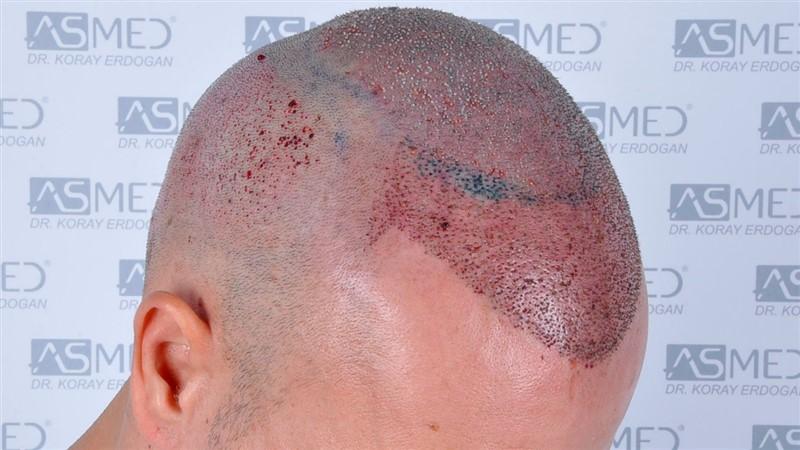 https://www.hairtransplantfue.org/asmed-hair-transplant-result/upload/Norwood5/5015-grafts-FUE/operation/b4crop_V2.jpg
