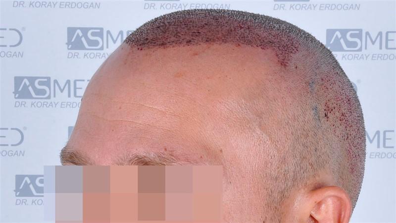 https://www.hairtransplantfue.org/asmed-hair-transplant-result/upload/Norwood5/5015-grafts-FUE/operation/b5crop_V2.jpg