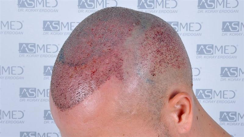 https://www.hairtransplantfue.org/asmed-hair-transplant-result/upload/Norwood5/5015-grafts-FUE/operation/b6crop_V2.jpg
