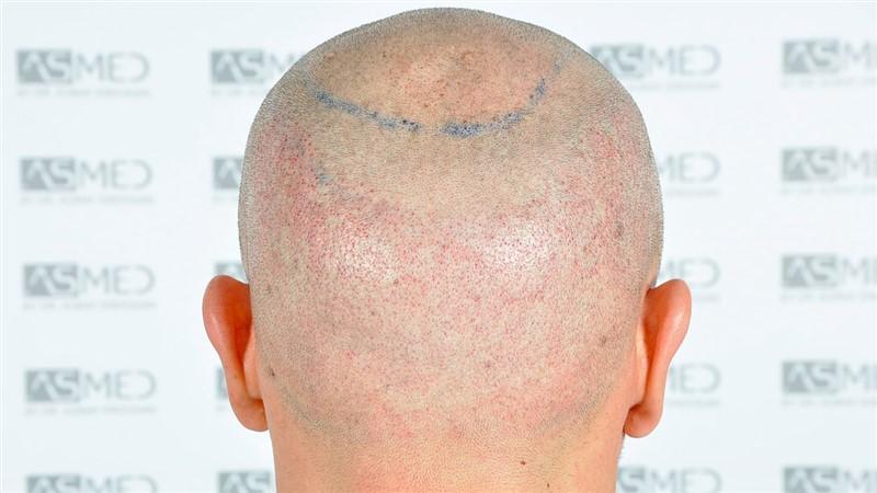 https://www.hairtransplantfue.org/asmed-hair-transplant-result/upload/Norwood5/5015-grafts-FUE/operation/b7crop_V2.jpg