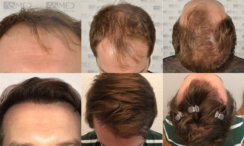 Dr Koray Erdogan -  5021 grafts FUE