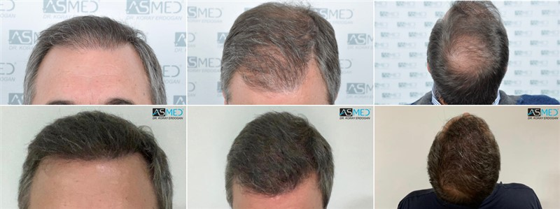 Dr. Koray Erdogan - 5027 Grafts FUE