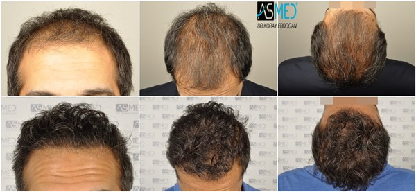 Dr Koray Erdogan - 5506-grafts-FUE- The patient had 2 FUT operation before