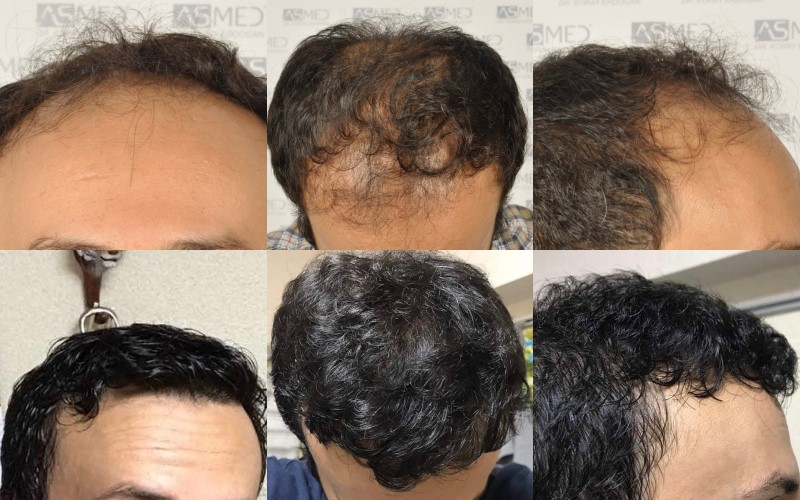 Dr Koray Erdogan -  5508 grafts FUE