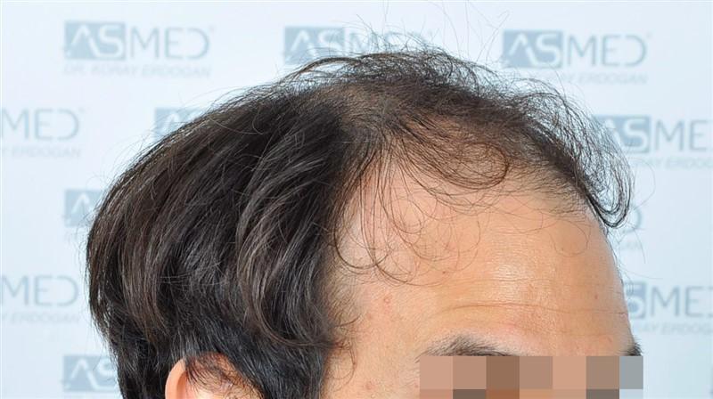 https://www.hairtransplantfue.org/asmed-hair-transplant-result/upload/Norwood5/5544-grafts-FUE/before/3.jpg