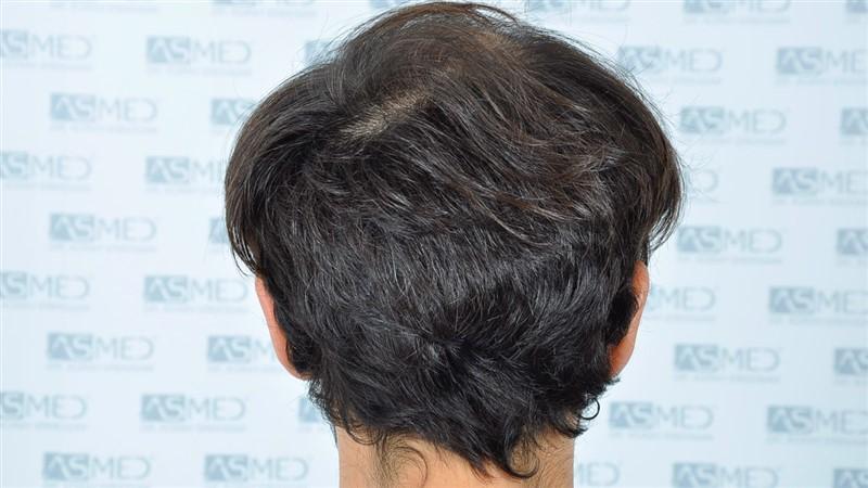 https://www.hairtransplantfue.org/asmed-hair-transplant-result/upload/Norwood5/5544-grafts-FUE/before/4.jpg