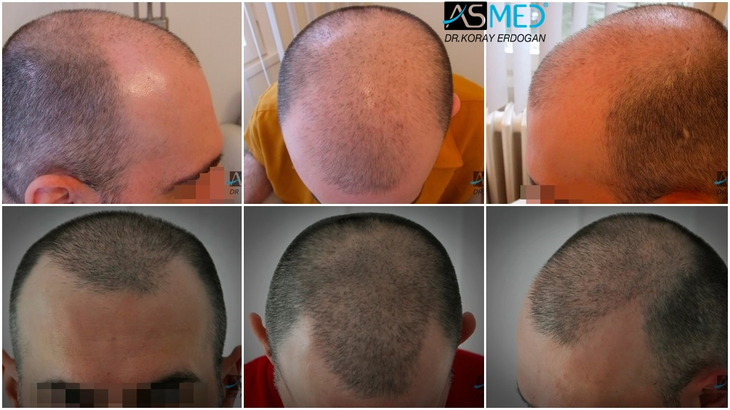 Dr Koray Erdogan - 2400 grafts FUE Repair
