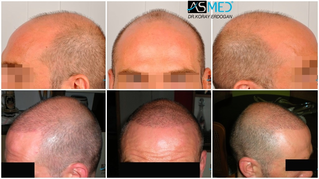 Dr Koray Erdogan - 2600 grafts FUE