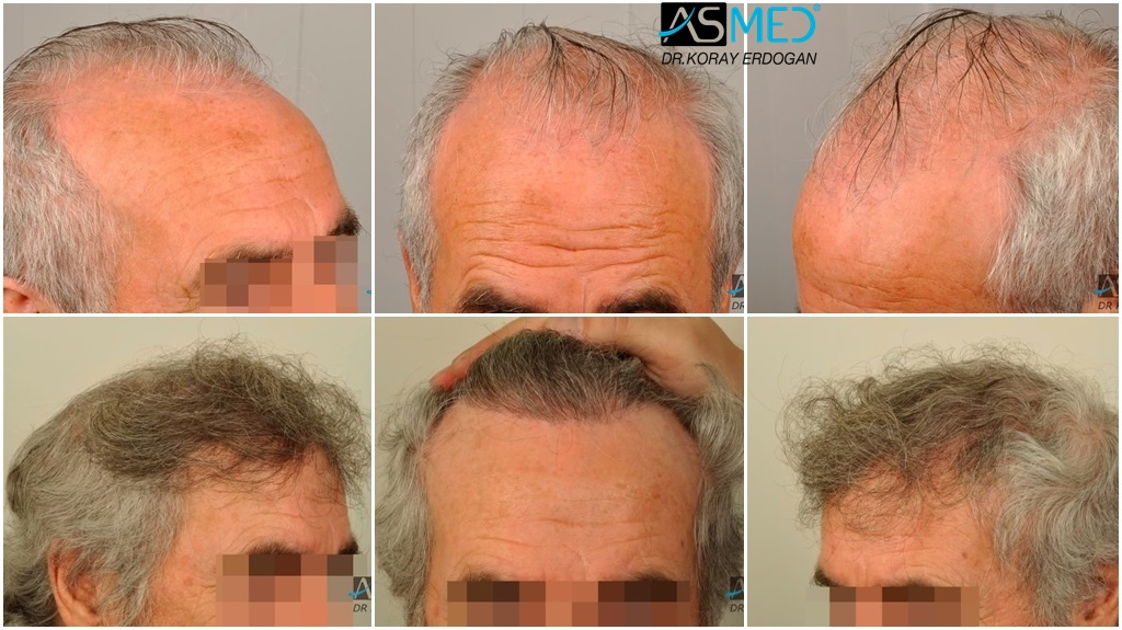 Dr Koray Erdogan - 3017 grafts FUE