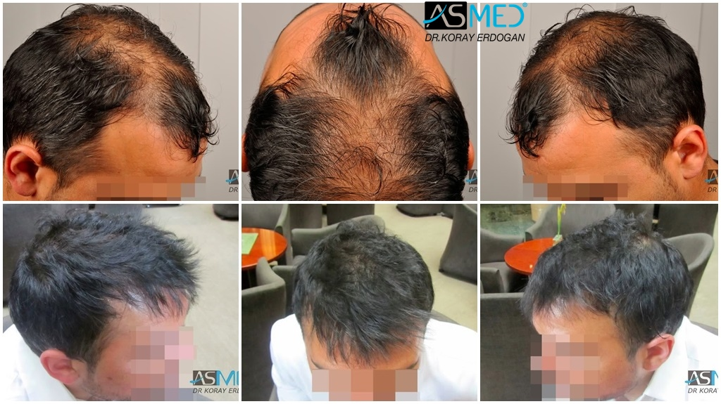 Dr Koray Erdogan - 3024 grafts FUE