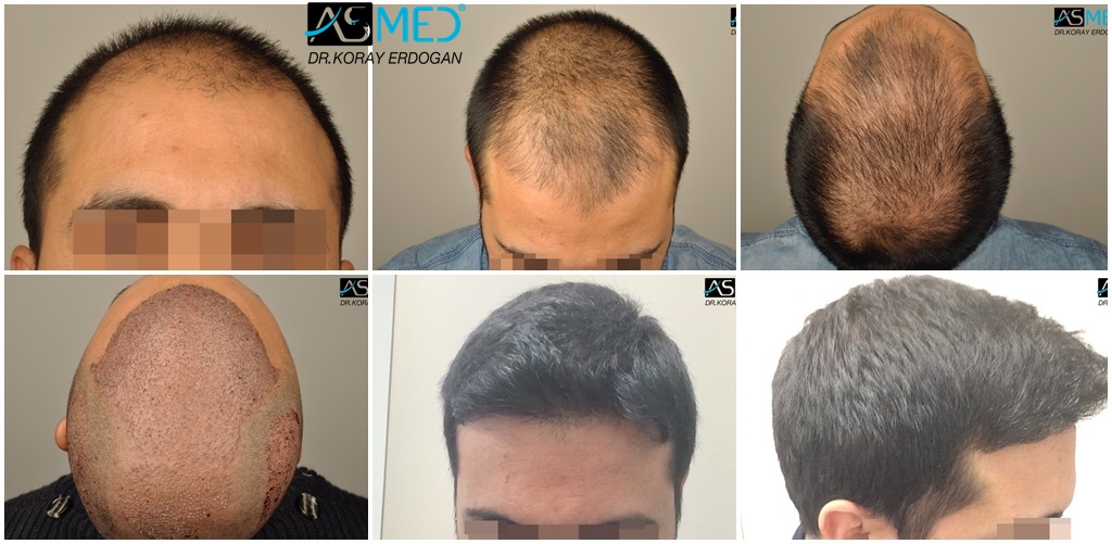Dr Koray Erdogan - 4004 grafts FUE