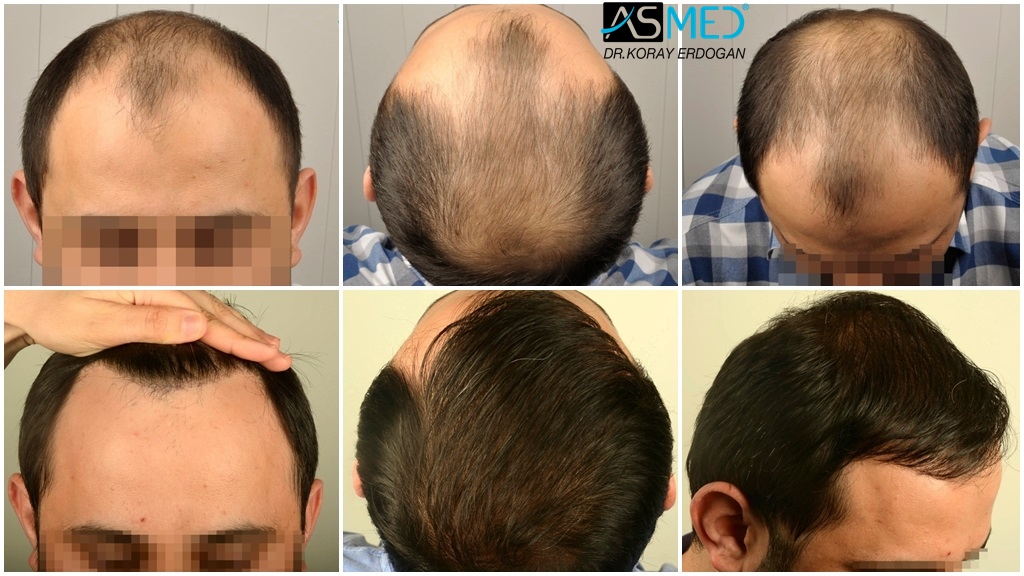 Dr Koray Erdogan - 4200 grafts FUE