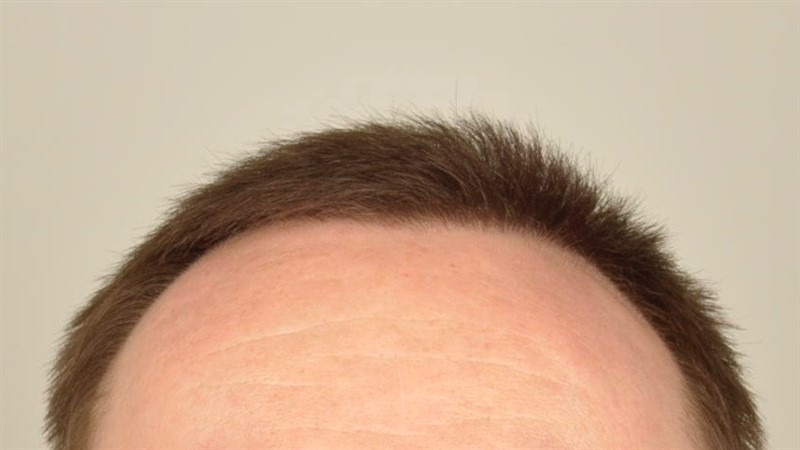 //www.hairtransplantfue.org/asmed-hair-transplant-result/upload/Norwood6/5009-grafts-FUE/FirstFUE/1year/dry/_DSC5797.jpg
