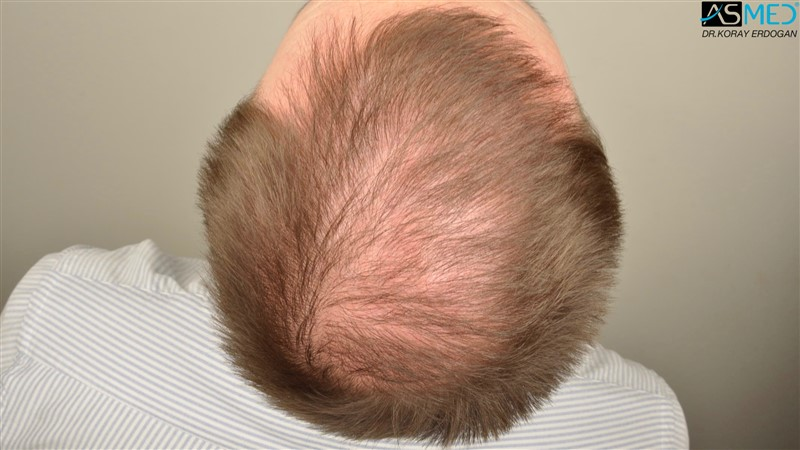 //www.hairtransplantfue.org/asmed-hair-transplant-result/upload/Norwood6/5009-grafts-FUE/FirstFUE/1year/dry/_DSC5809.jpg
