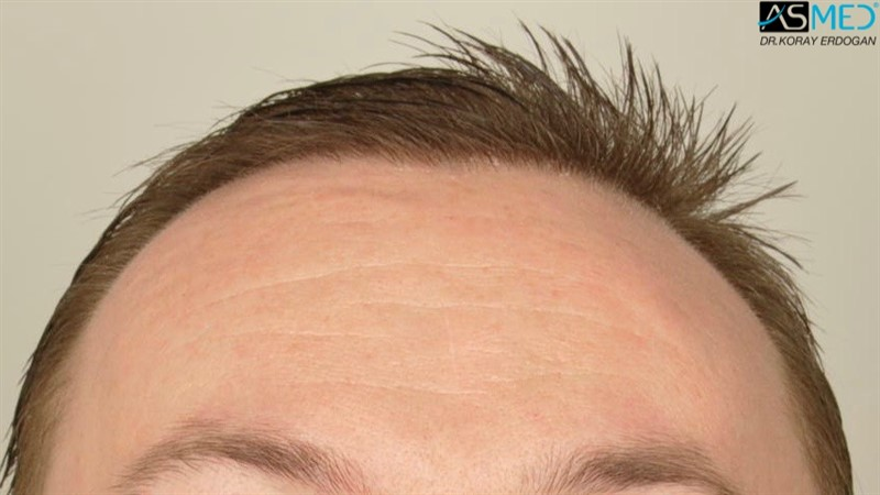 //www.hairtransplantfue.org/asmed-hair-transplant-result/upload/Norwood6/5009-grafts-FUE/FirstFUE/1year/wet/_DSC5810.jpg