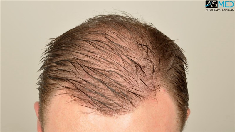 //www.hairtransplantfue.org/asmed-hair-transplant-result/upload/Norwood6/5009-grafts-FUE/FirstFUE/1year/wet/_DSC5811.jpg