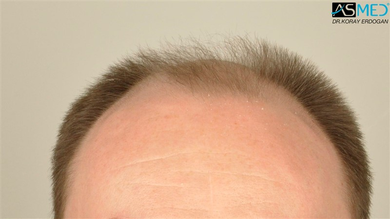 //www.hairtransplantfue.org/asmed-hair-transplant-result/upload/Norwood6/5009-grafts-FUE/FirstFUE/before/_DSC4315.jpg