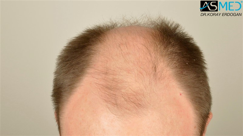 //www.hairtransplantfue.org/asmed-hair-transplant-result/upload/Norwood6/5009-grafts-FUE/FirstFUE/before/_DSC4316.jpg