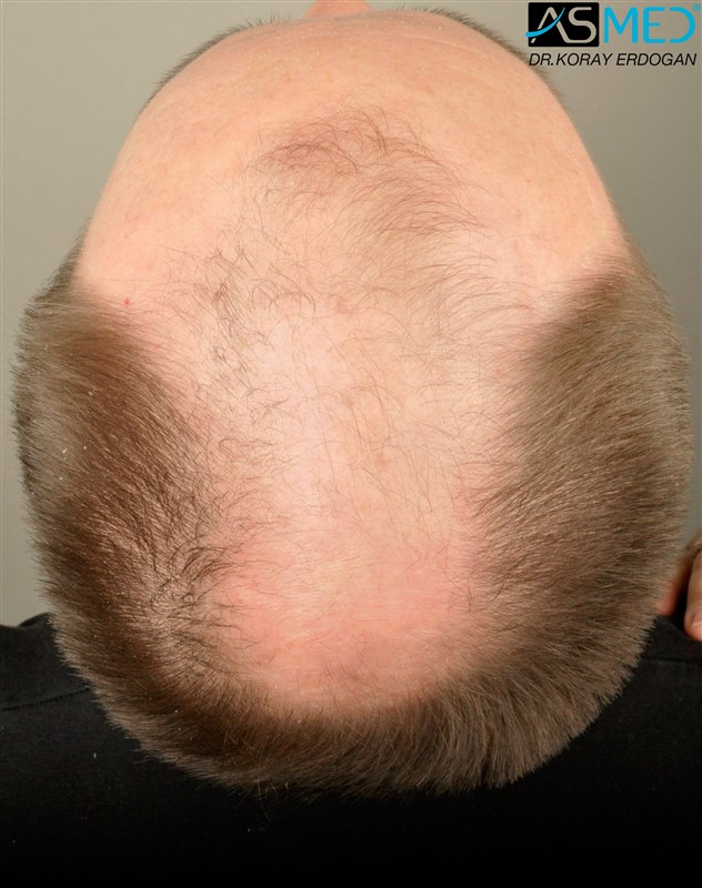 //www.hairtransplantfue.org/asmed-hair-transplant-result/upload/Norwood6/5009-grafts-FUE/FirstFUE/before/_DSC4331.jpg