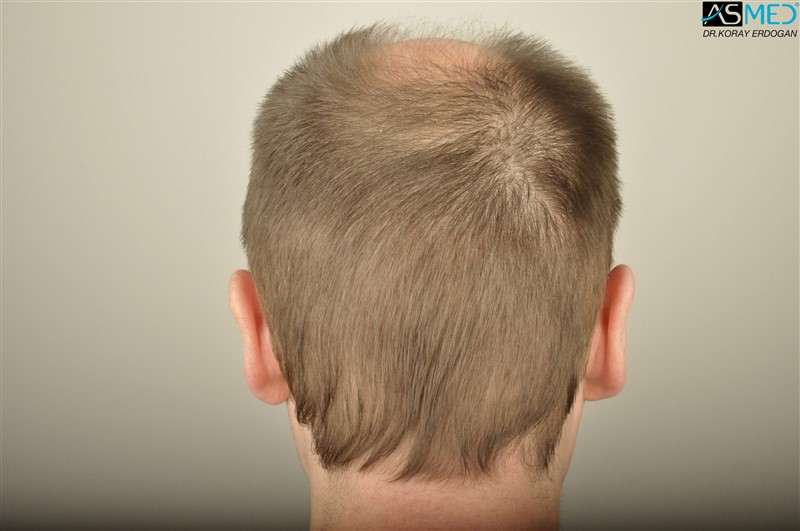 //www.hairtransplantfue.org/asmed-hair-transplant-result/upload/Norwood6/5009-grafts-FUE/FirstFUE/before/_DSC4332.jpg
