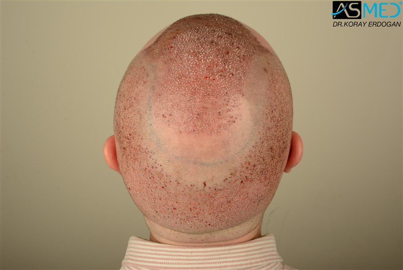 //www.hairtransplantfue.org/asmed-hair-transplant-result/upload/Norwood6/5009-grafts-FUE/FirstFUE/operation/DSC_5754.jpg