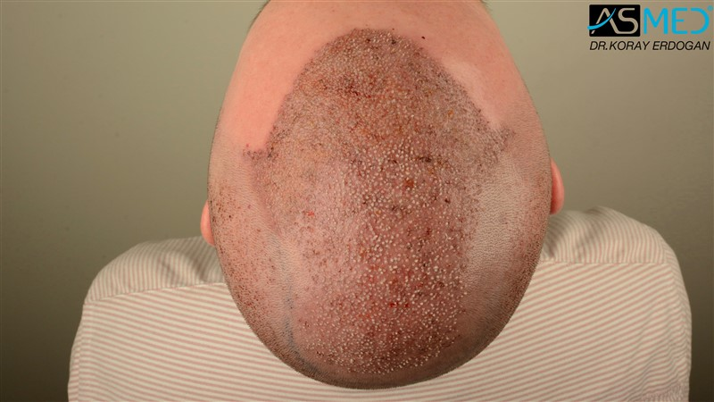 //www.hairtransplantfue.org/asmed-hair-transplant-result/upload/Norwood6/5009-grafts-FUE/FirstFUE/operation/DSC_5755.jpg