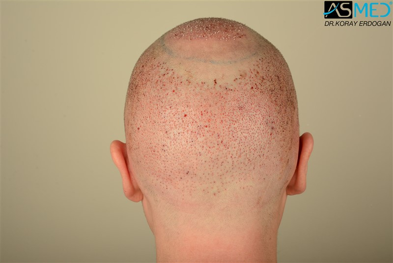 //www.hairtransplantfue.org/asmed-hair-transplant-result/upload/Norwood6/5009-grafts-FUE/FirstFUE/operation/DSC_5756.jpg