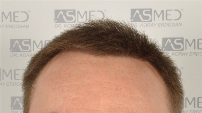 //www.hairtransplantfue.org/asmed-hair-transplant-result/upload/Norwood6/5009-grafts-FUE/SecondFUE/1%20year/dry/_DSC4226.jpg