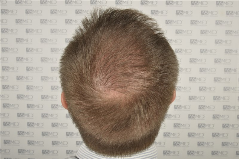 //www.hairtransplantfue.org/asmed-hair-transplant-result/upload/Norwood6/5009-grafts-FUE/SecondFUE/1%20year/dry/_DSC4235.jpg