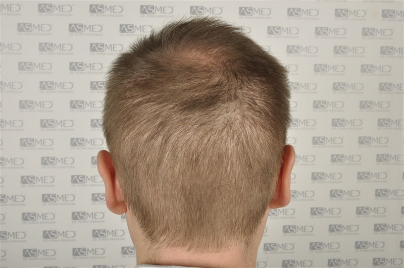 //www.hairtransplantfue.org/asmed-hair-transplant-result/upload/Norwood6/5009-grafts-FUE/SecondFUE/1%20year/dry/_DSC4237_.jpg