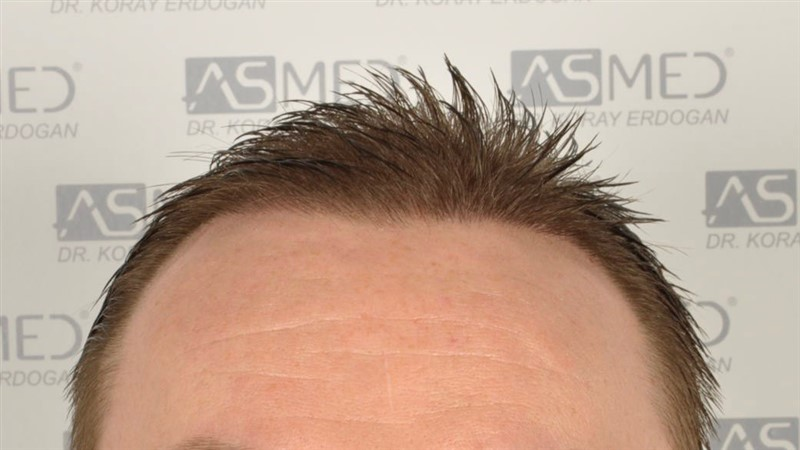 //www.hairtransplantfue.org/asmed-hair-transplant-result/upload/Norwood6/5009-grafts-FUE/SecondFUE/1%20year/wet/_DSC4237.jpg